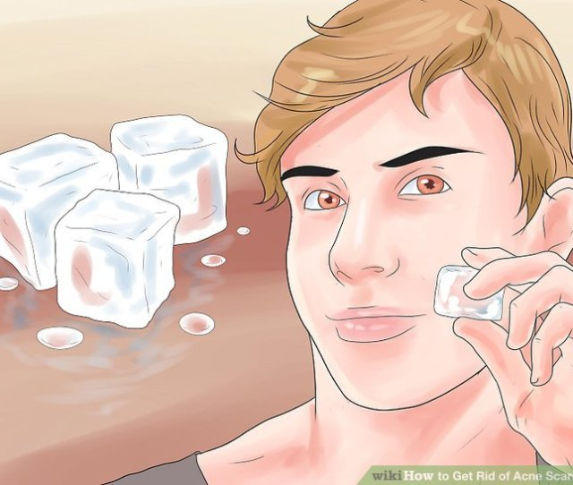 Image Titled Get Rid Of Acne Scars Fast Step