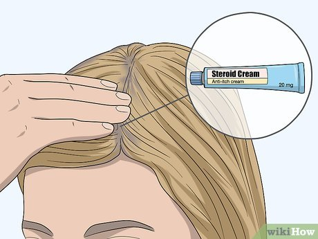 3 Easy Ways To Treat An Itchy Scalp After Using Hair Dye Wikihow