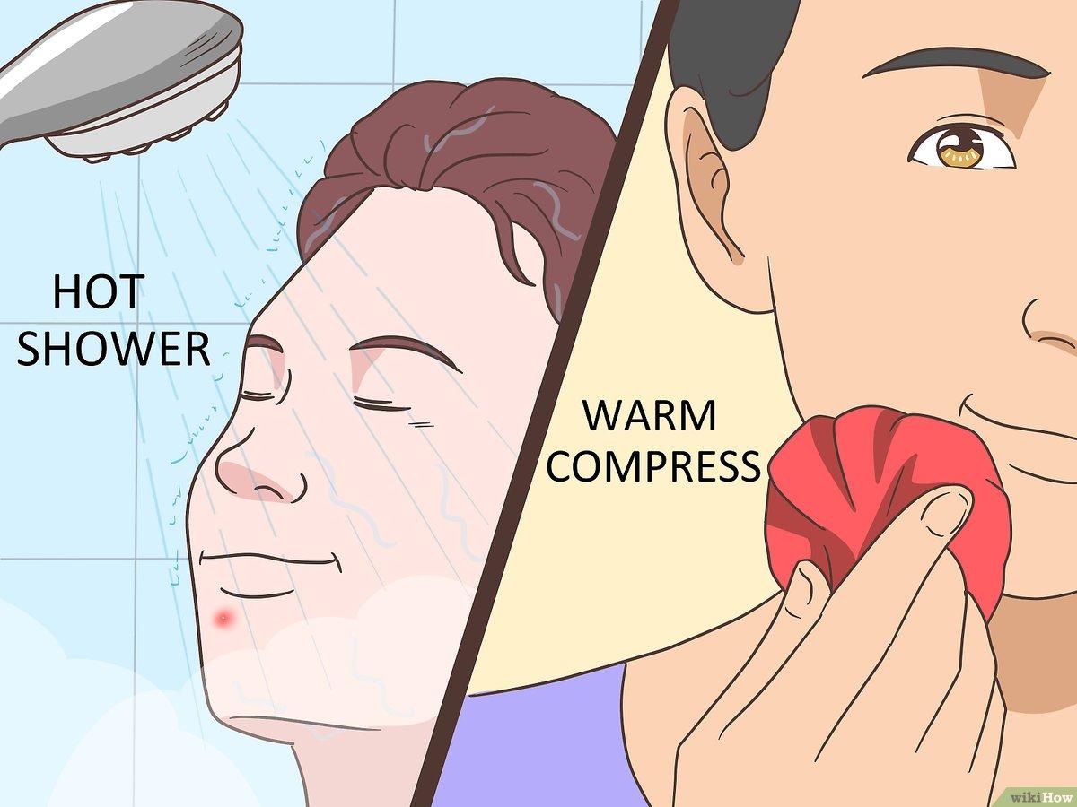 Como Secar Una Espinilla Ciega