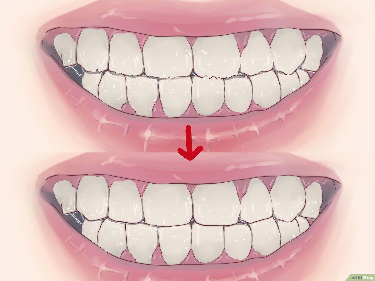 كيفية التوقف عن صرير الأسنان في الليل 14 خطوة صور توضيحية
