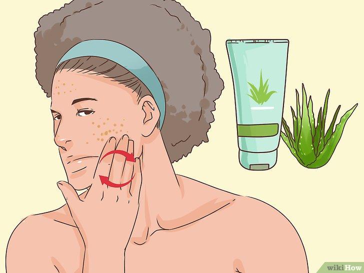 صورة عنوانها Get Rid of a Popped Pimple Overnight Step 9