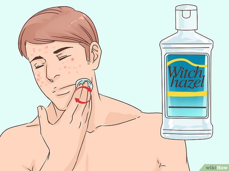 صورة عنوانها Get Rid of a Popped Pimple Overnight Step 10