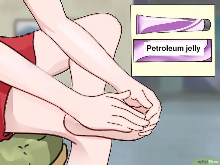 Immagine titolata Prevent Foot Blisters Step 9