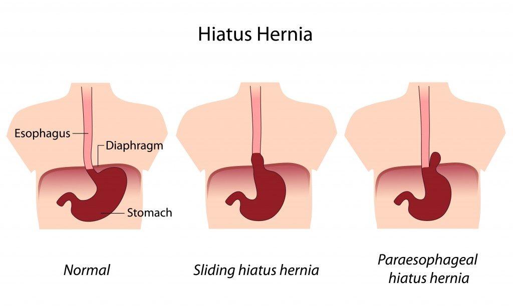 Hernia Hiatus