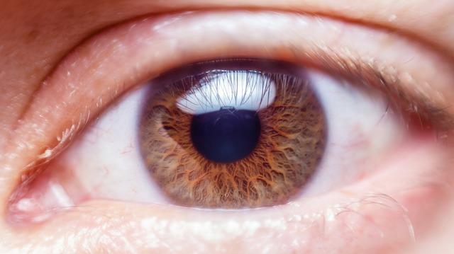 Ciri-Ciri Mata Minus dan Penyebab Mata Minus