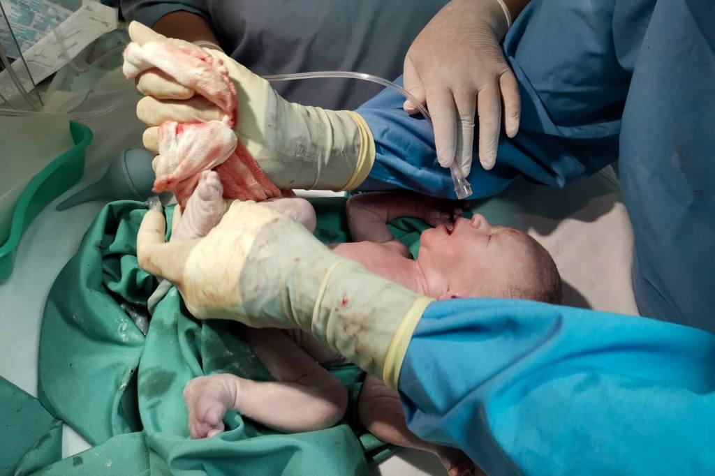 Geburt meiner Zwillinge Newborn