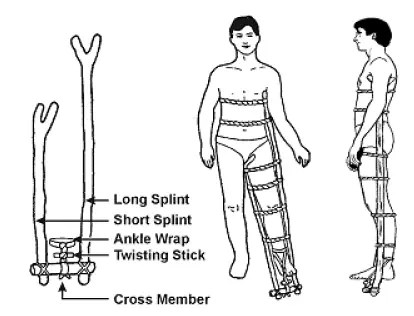 Treating broken bone fractures in a survival situation