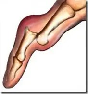 Drawing of a dislocated joint