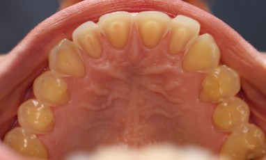 1. Before Upper Arch; Full Mouth Rehabilitation
