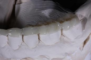 2.Lab Processed Composite Orthotic