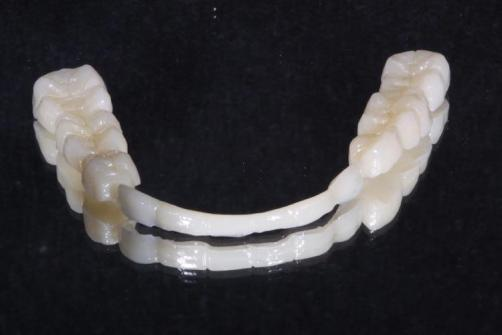 4.Lab Processed Composite Orthotic