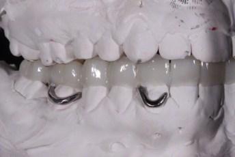 5.Metal Framed Lab Processed Orthotic