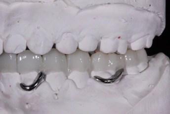 6.Metal Framed Lab Processed Orthotic