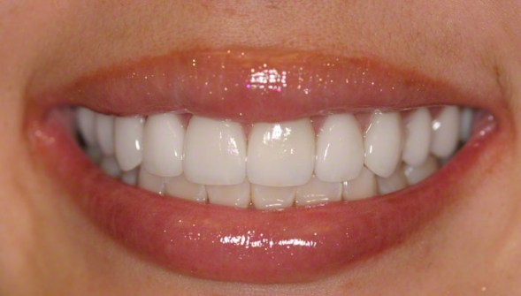 4. After Smile; Veneers