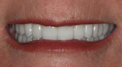 6. Final Smile; Neuromuscular Rehabilitation