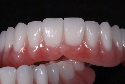 1.Complete Dentures with Naturalized Base
