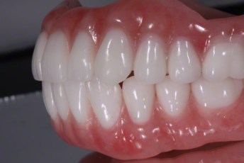 5.Complete Dentures with Naturalized Base