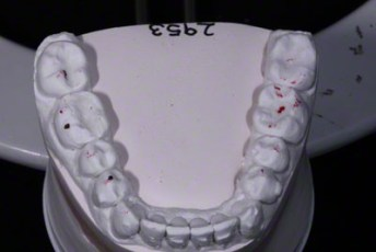 6.Model equilibration adjustment free crown & bridge