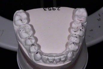 17.Model equilibration adjustment free crown & bridge
