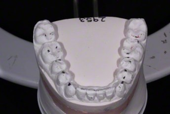 26.Model equilibration adjustment free crown & bridge