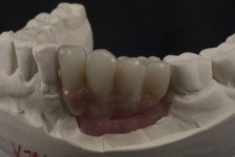6. Left Lateral View Try-in on Model;Screw Retained Zirconia Implant Bridge