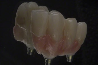 8.Screw Retained Zirconia Implant Bridge