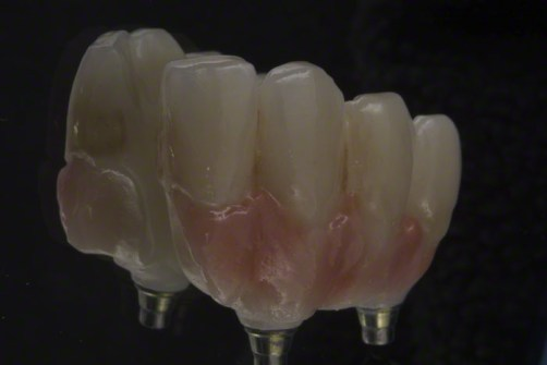 11.Screw Retained Zirconia Implant Bridge