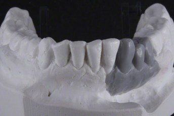 2.Waxed;Screw Retained Zirconia Implant Bridge