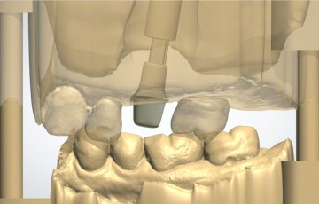 3. Occlusal View of Digital Scan