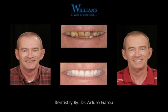 Smile Makeover by Dr. Arturo Garcia
