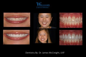Smile Makeover by Dr. James McCreight