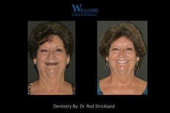 Strickland FOY™ Dentures by Dr.Rod Strickland