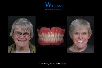 Strickland FOY™ Dentures, by Dr. Marcus Whitmore