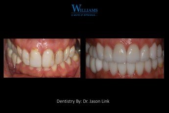 Full Mouth Rehabilitation By Dr. Jason Link