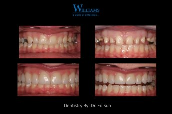 Smile Makeover by Dr. Edmond Suh
