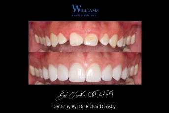 Smile Makeover with Veneers by Dr. Richard Crosby