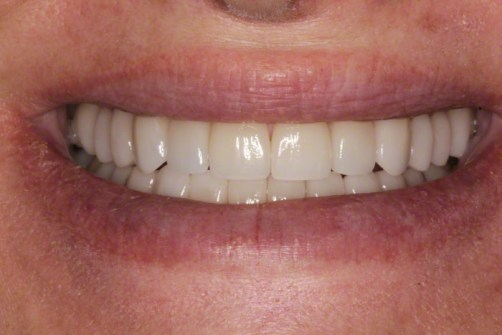 9. After Smile; Full Mouth Reconstruction