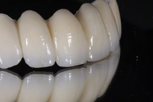 1.Zirconia Bridge