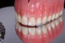 New-You-Denture-metal-partial-6