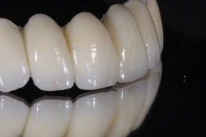 Zirconia-bridge-01