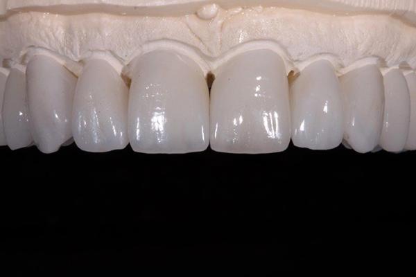 Ceramic Metal Free Dental Restorations