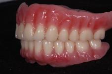 FOY™ Dentures Rod Strickland 007