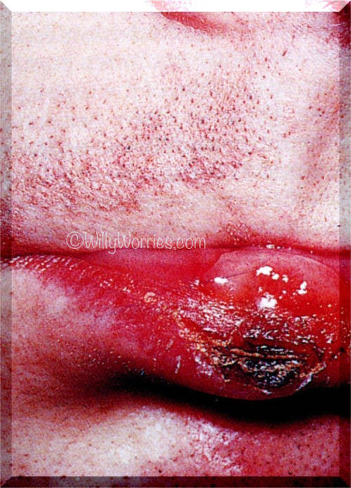 Sore on lip syphilis