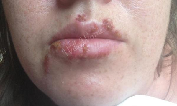 Photo of Oral herpes, cold sore, caused by herpes simplex virus 1 / HSV1