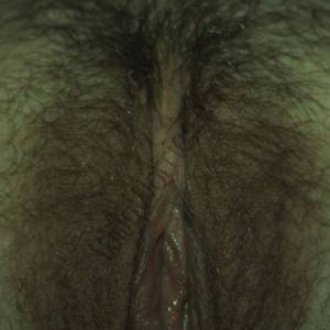 This image was taken to show the woman's clitoris, in particular, but also shows part of her vulva