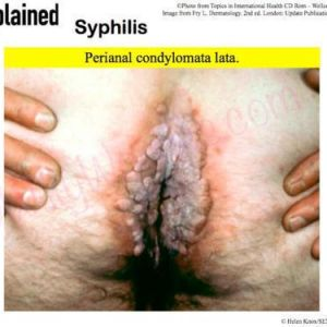 This picture shows perianal condylomata lata, from infection with syphilis - treponema pallidum