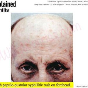 Picture of a man with papule-pustular syphilitic rash on his forehead.
