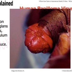 Sexplained® Training - Picture Slide showing warts on the goals penis, frenulum, and prepuce (foreskin)