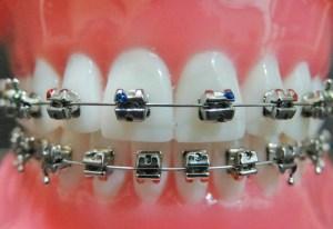 aparelho autoligável ortodontia