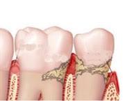 → O que é a periodontite ou doença periodontal?
